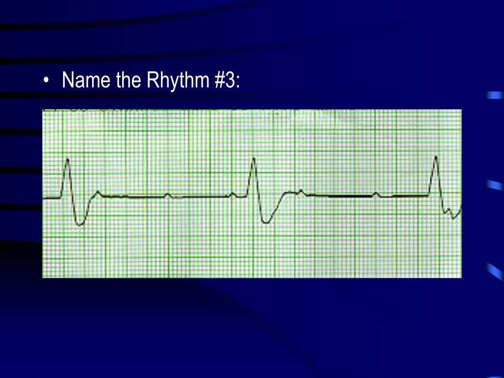Name the Rhythm #3: