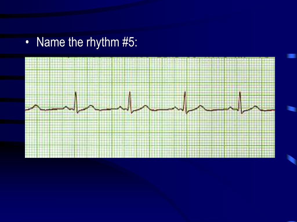 Name the rhythm #5: