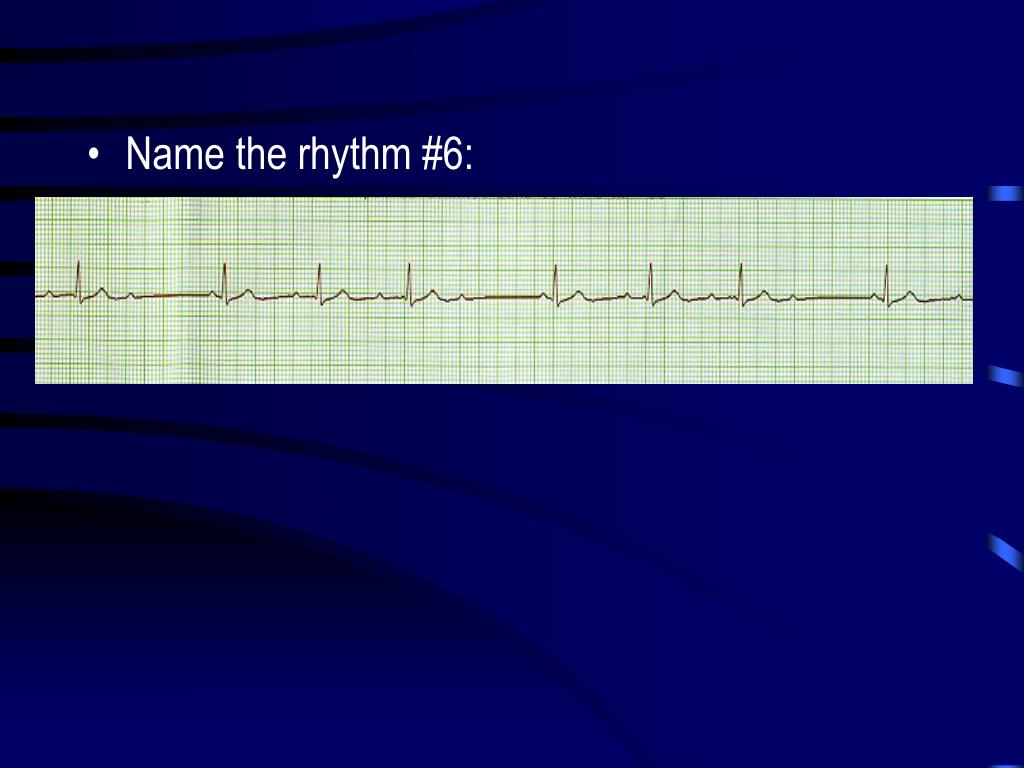 Name the rhythm #6: