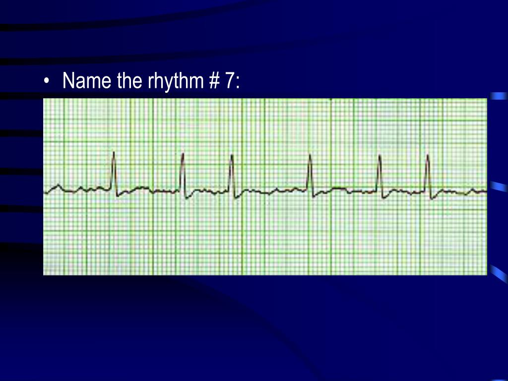 Name the rhythm # 7: