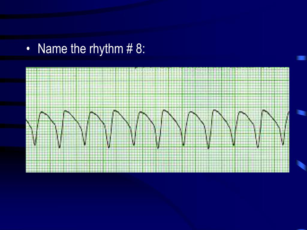 Name the rhythm # 8: