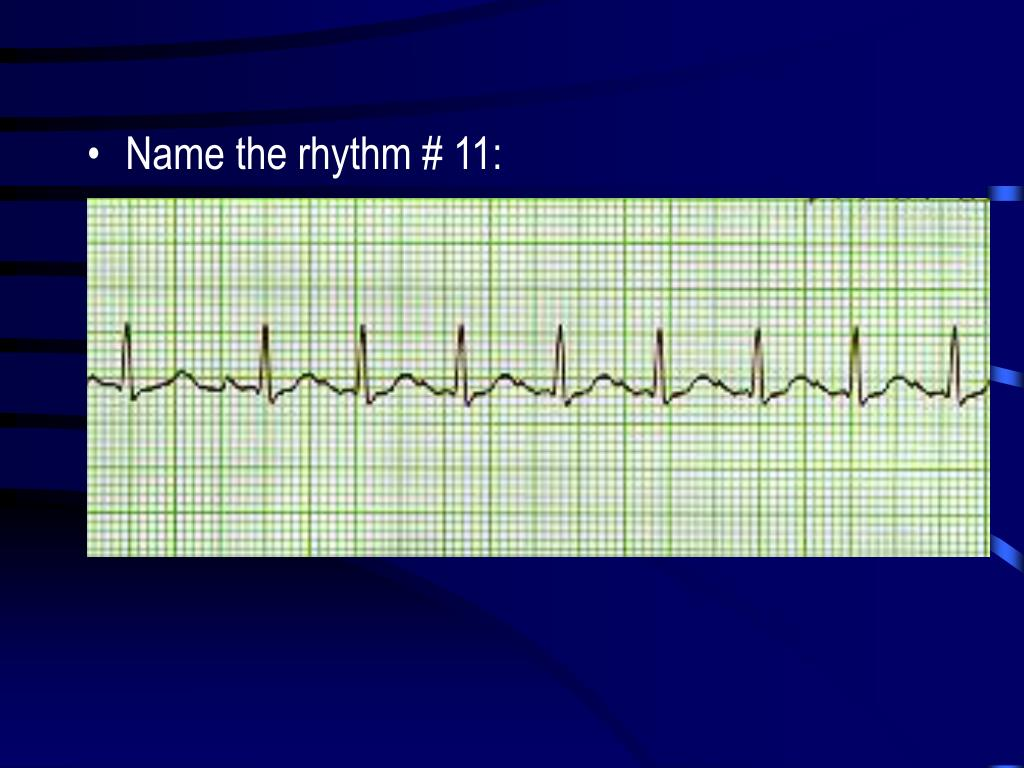 Name the rhythm # 11: