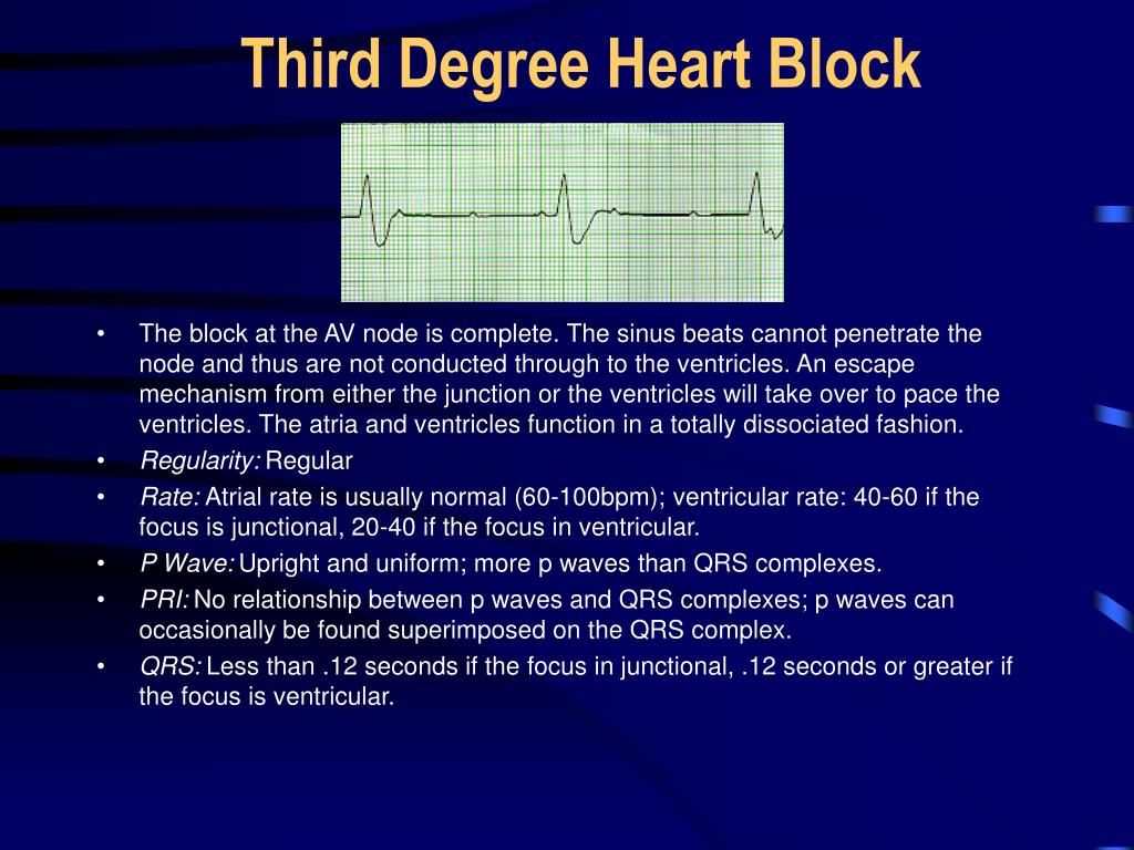 Third Degree Heart Block