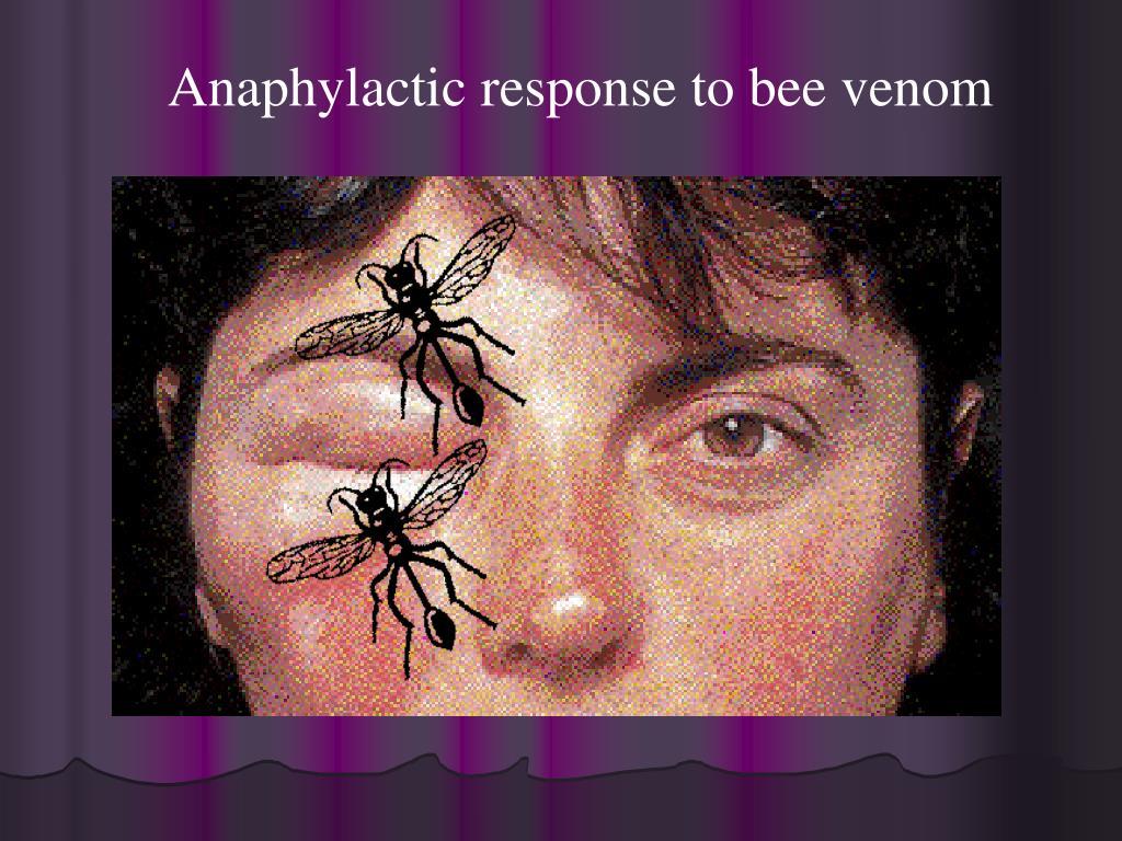 Anaphylactic response to bee venom