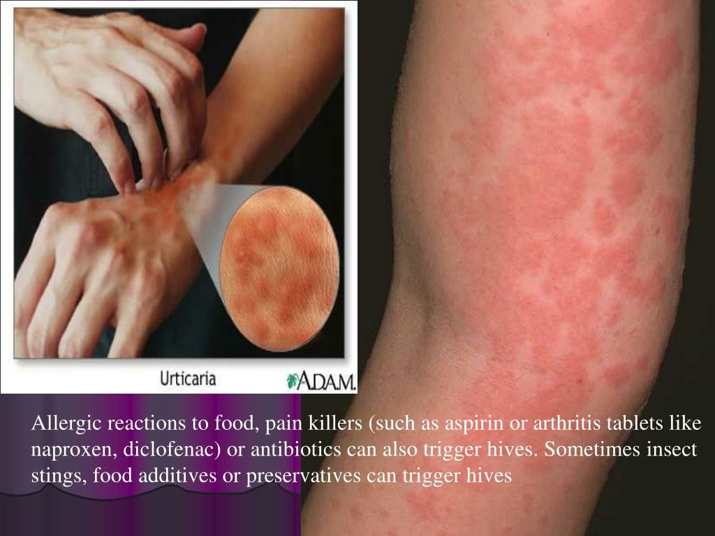 Allergic reactions to food, pain killers (such as aspirin or arthritis tablets like naproxen, diclofenac) or antibiotics can also trigger hives. Sometimes insect stings, food additives or preservatives can trigger hives