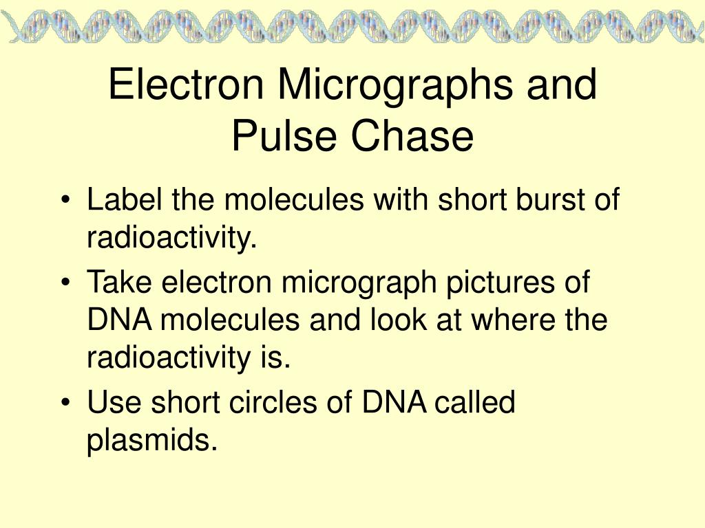 Electron Micrographs and Pulse Chase