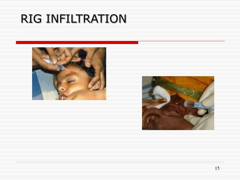 RIG INFILTRATION