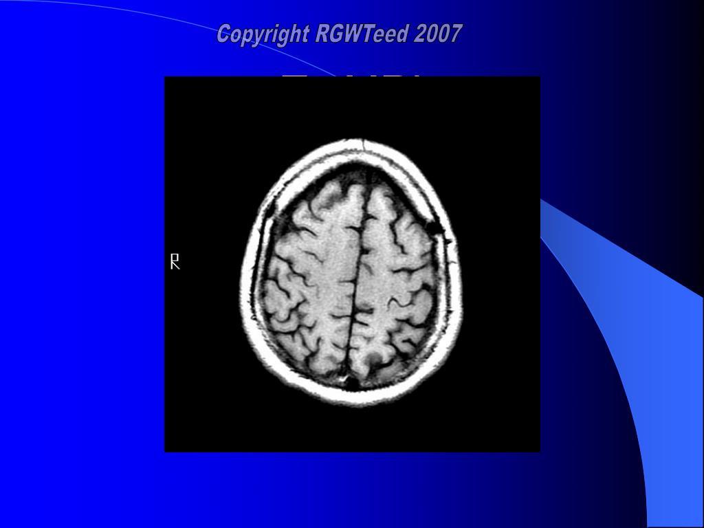 T1 MRI