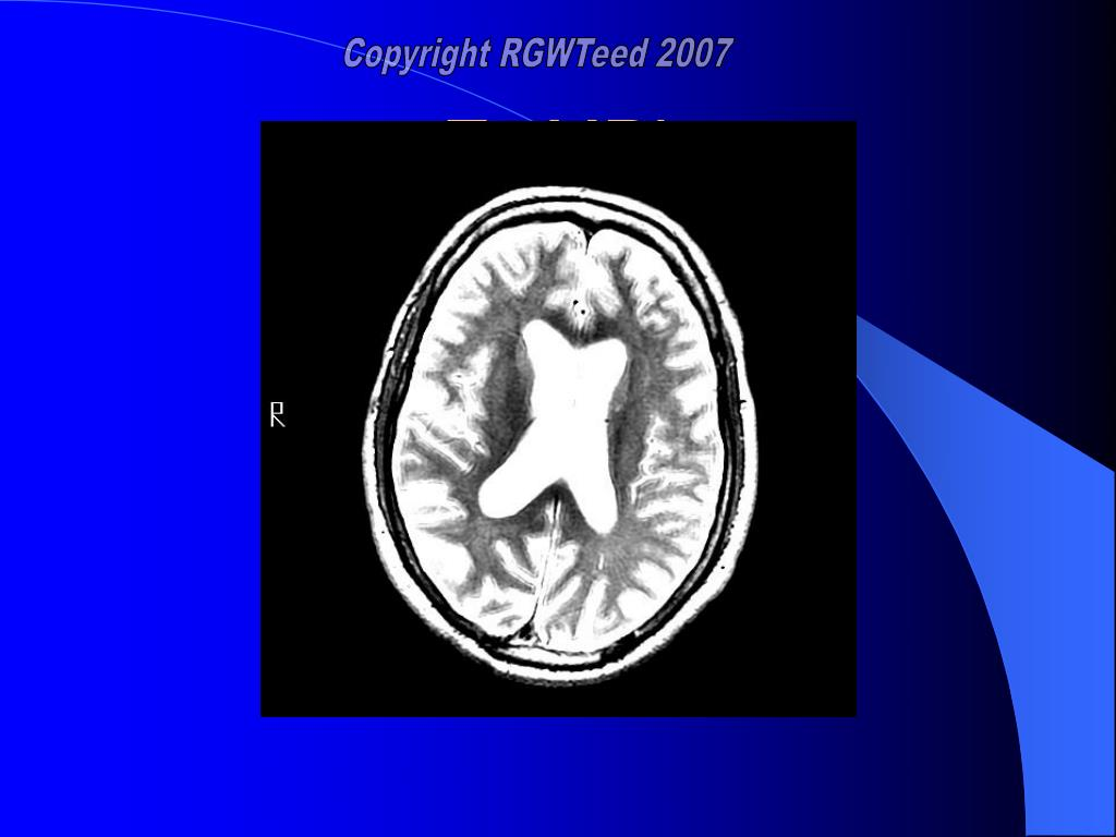 T2 MRI