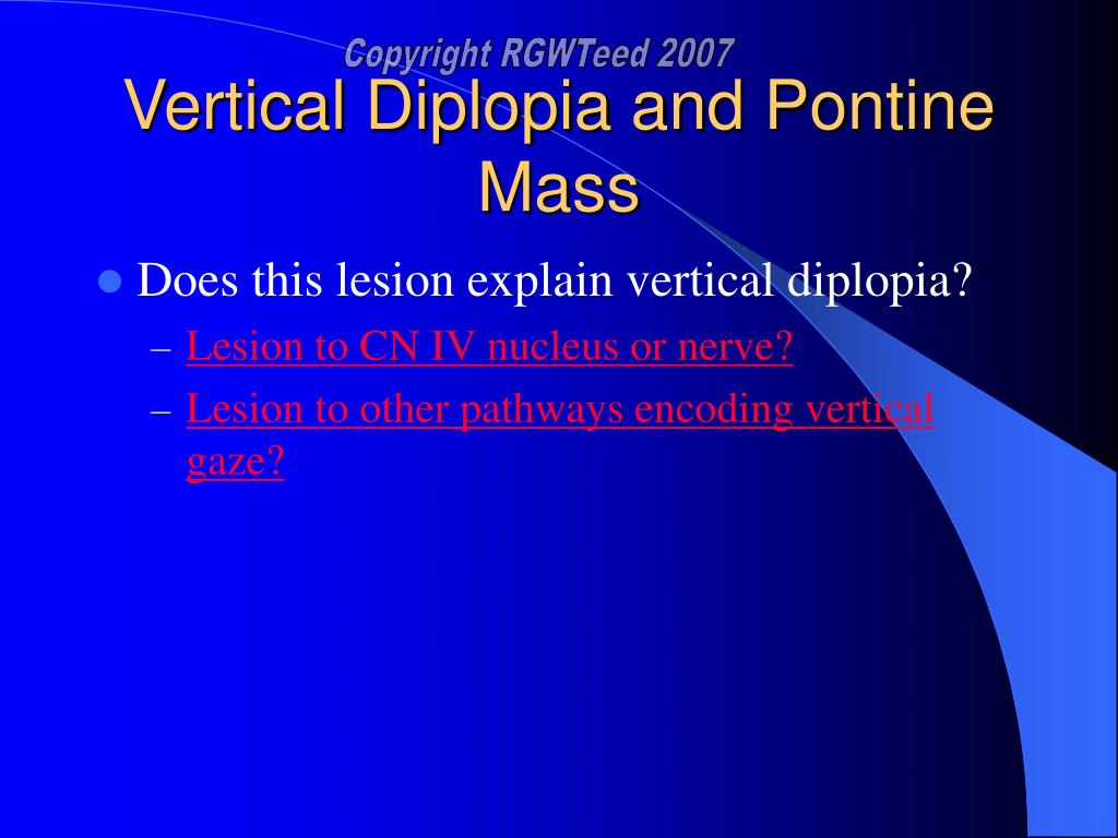Vertical Diplopia and Pontine Mass