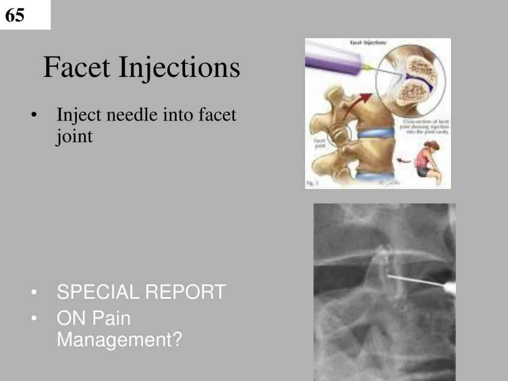 Facet Injections