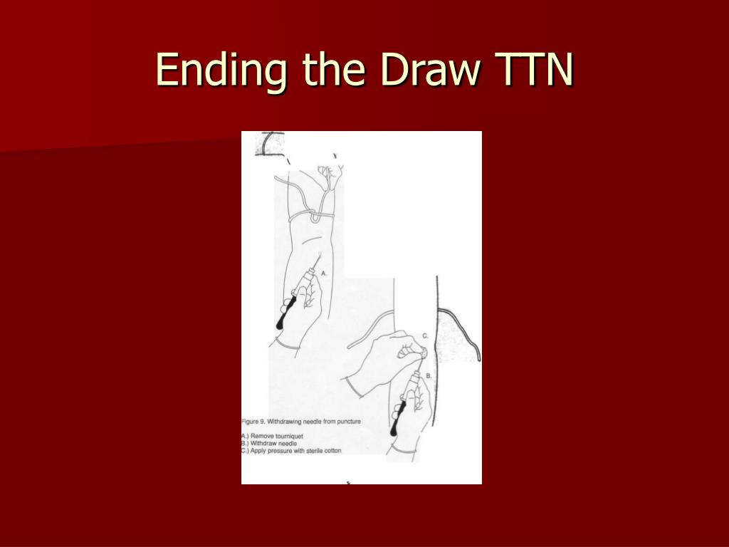 Ending the Draw TTN