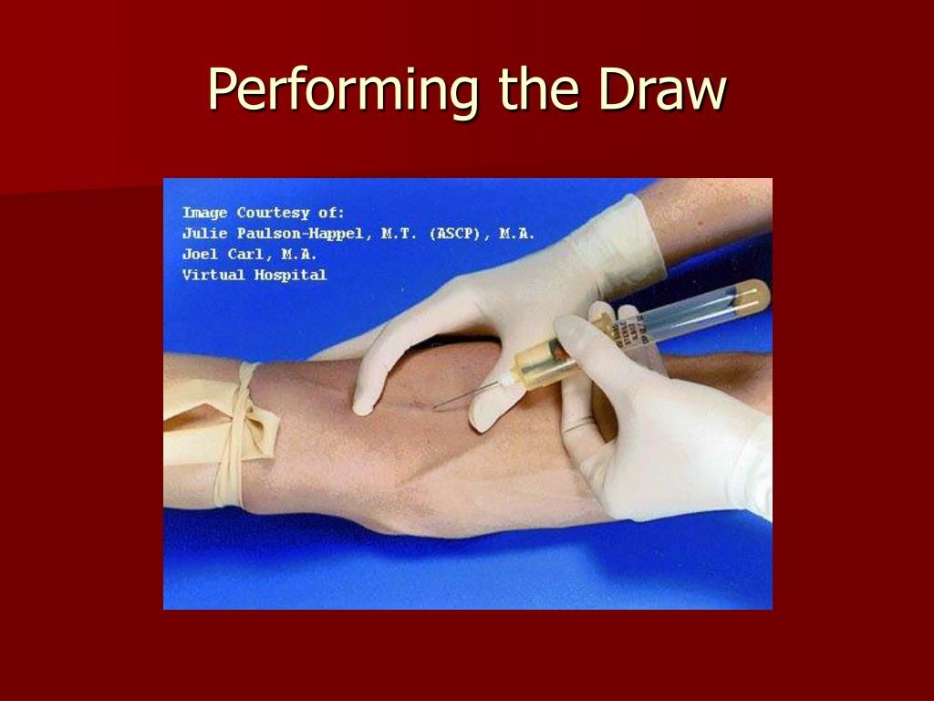 Performing the Draw