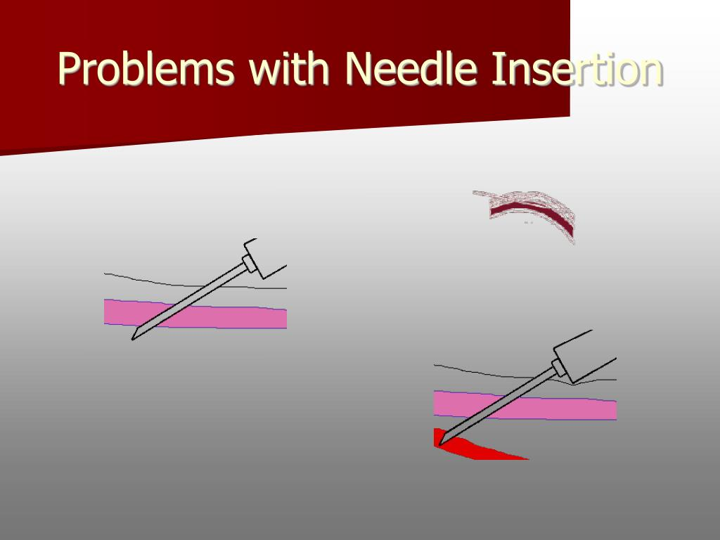 Problems with Needle Insertion