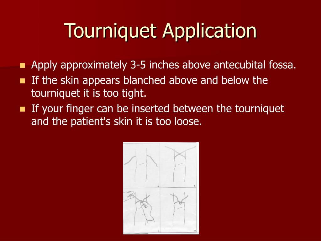 Tourniquet Application