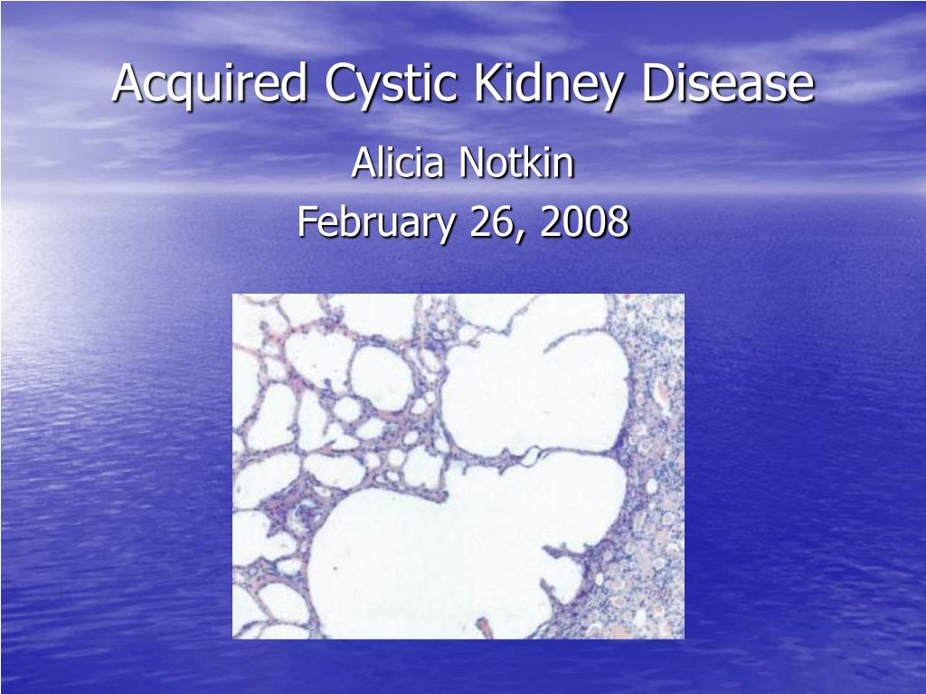 Acquired Cystic Kidney Disease