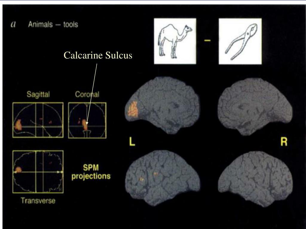 Calcarine Sulcus
