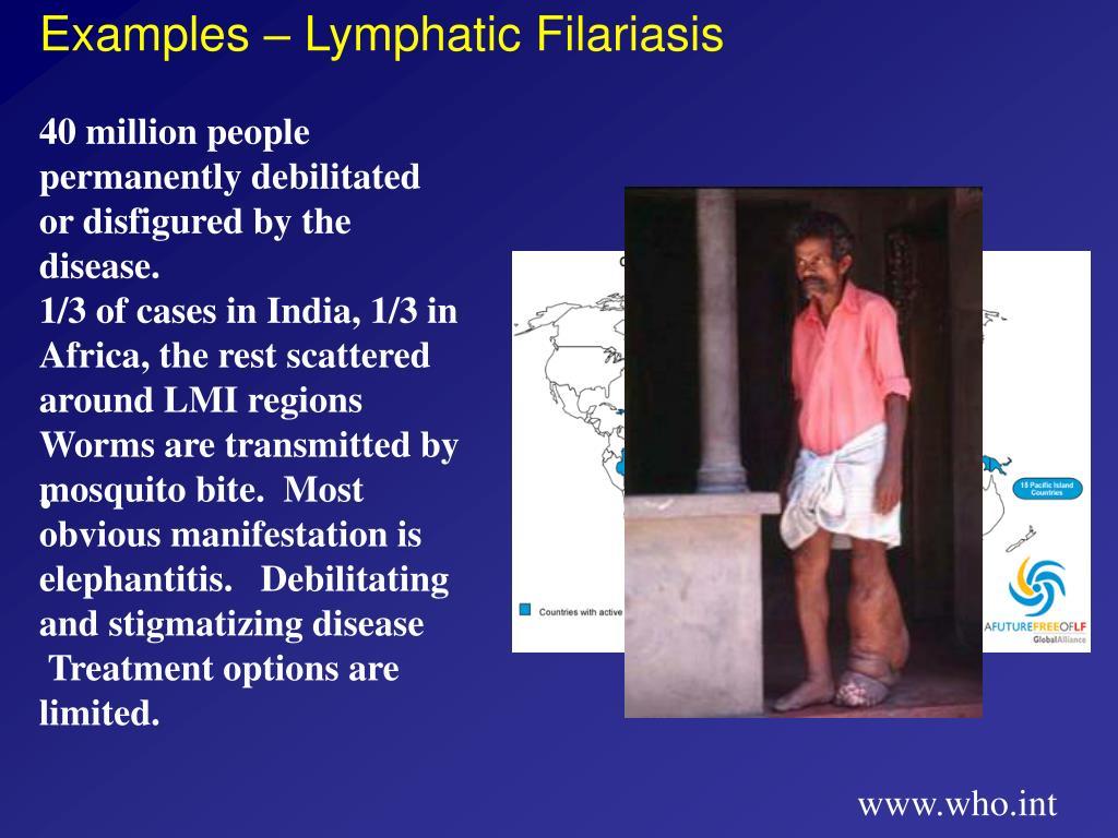 Examples – Lymphatic Filariasis