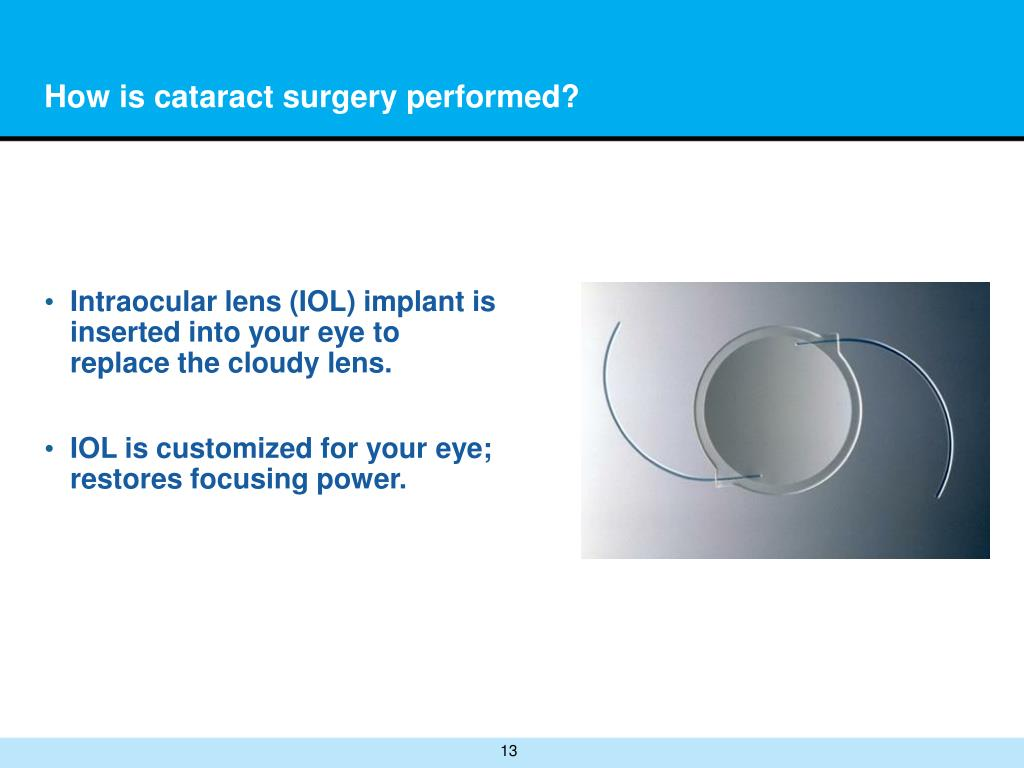 How is cataract surgery performed?