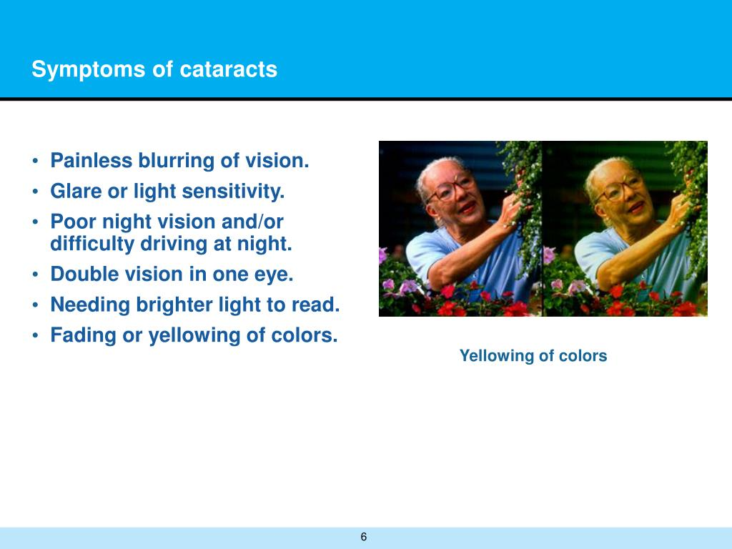 Symptoms of cataracts