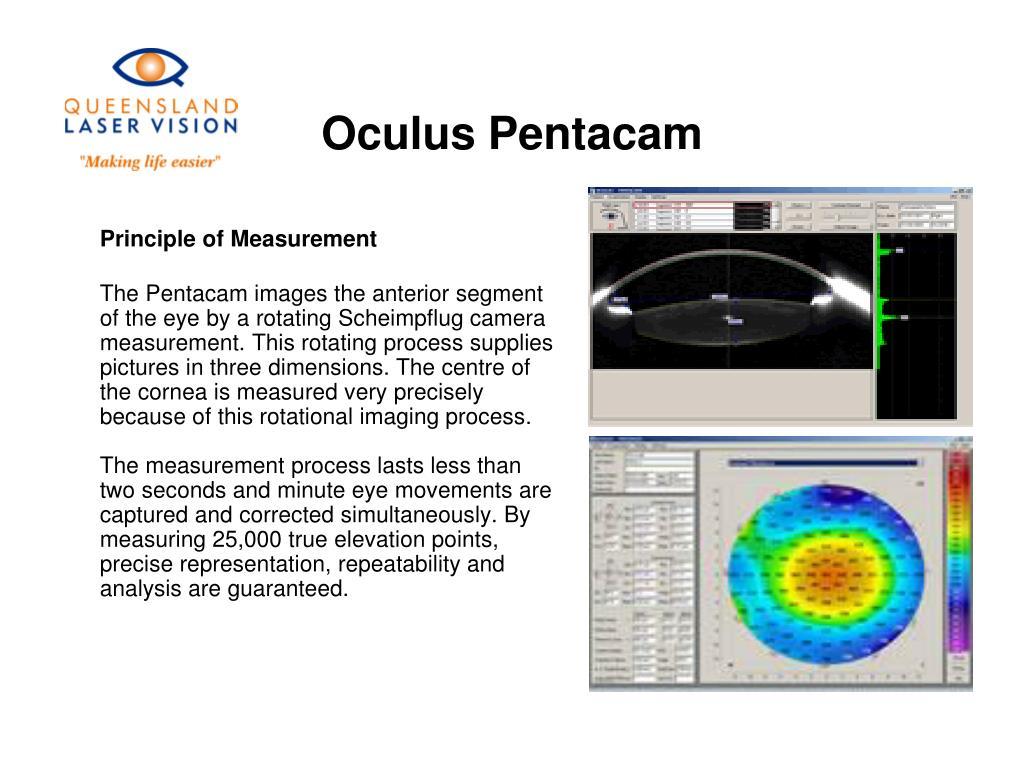 Oculus Pentacam