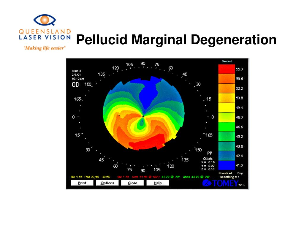 Pellucid Marginal Degeneration