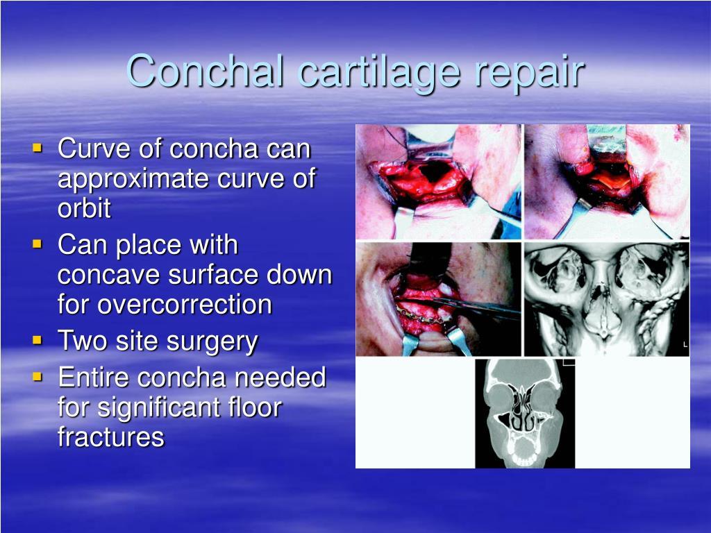 Conchal cartilage repair