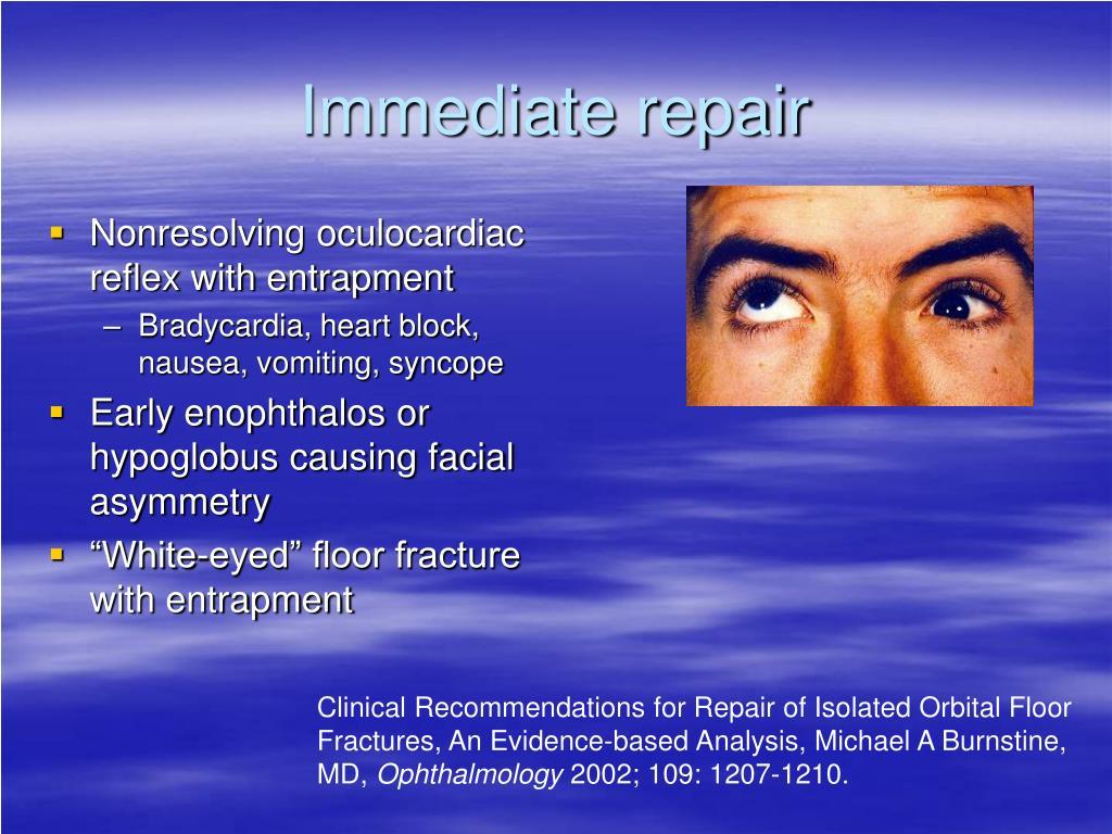 Nonresolving oculocardiac reflex with entrapment