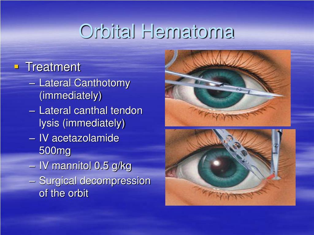 Orbital Hematoma