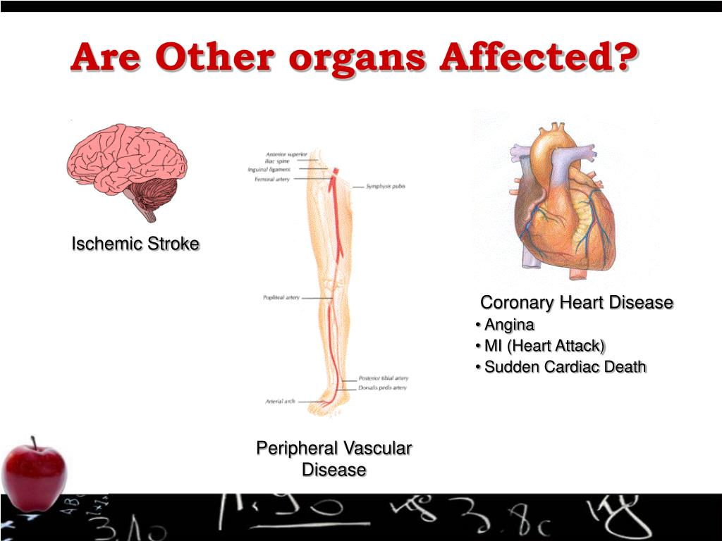 Are Other organs Affected?