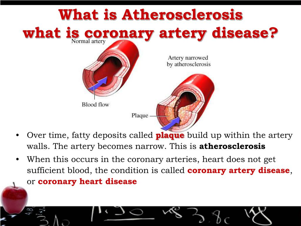 What is Atherosclerosis