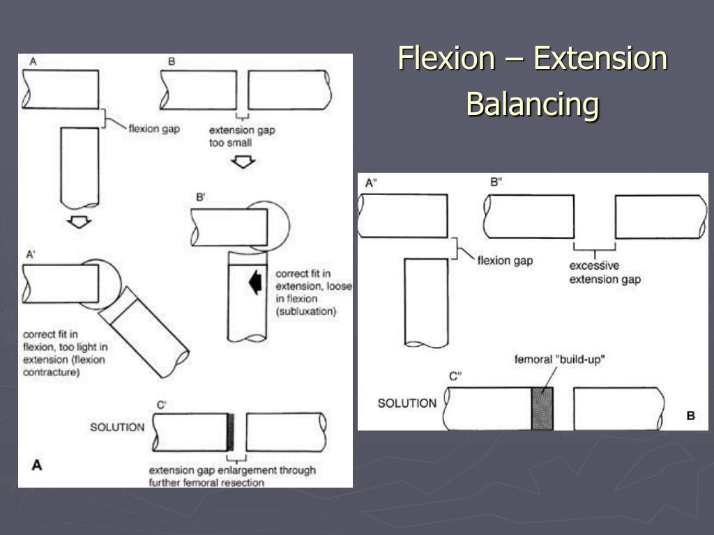 Flexion – Extension Balancing