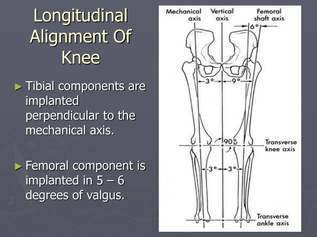 Longitudinal Alignment Of Knee