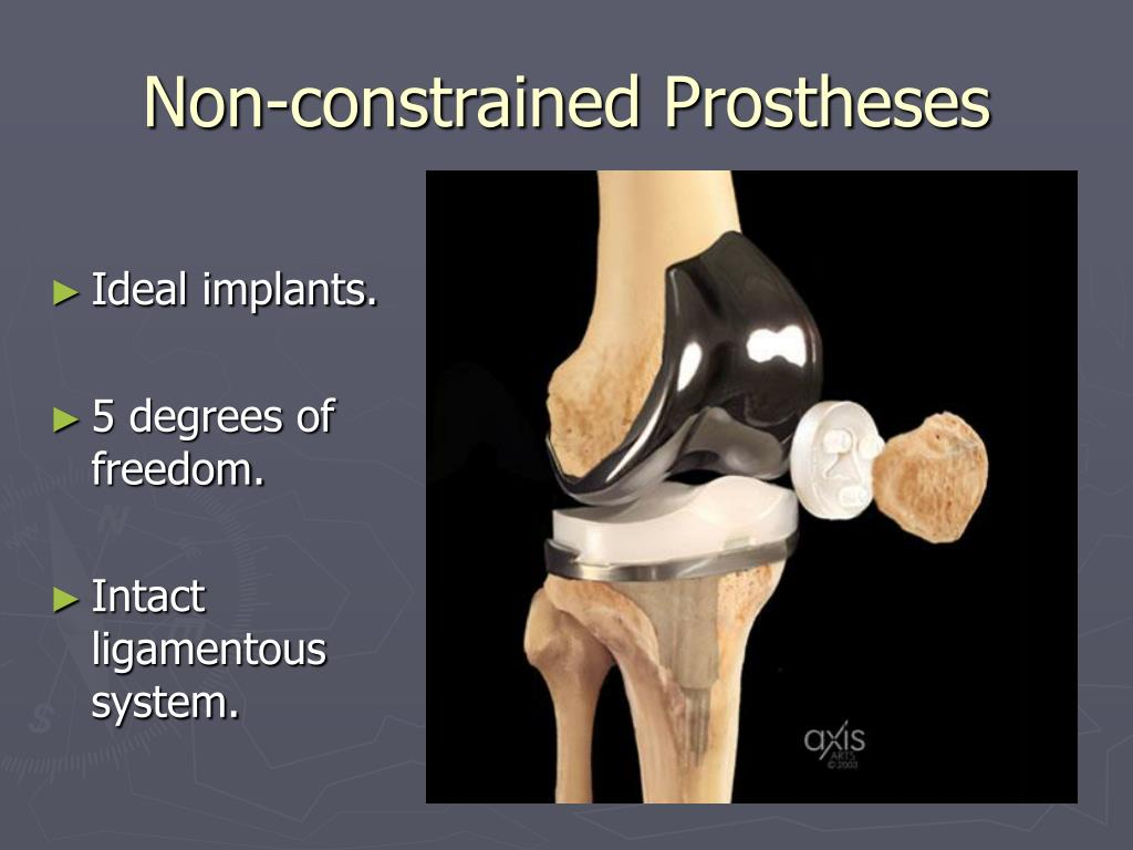 Non-constrained Prostheses