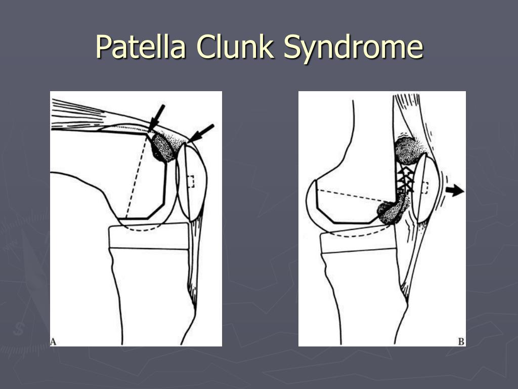 Patella Clunk Syndrome