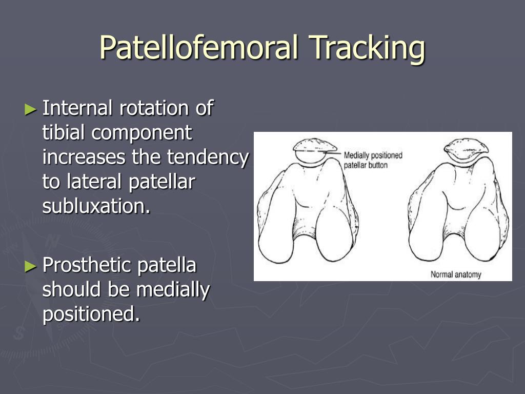 Patellofemoral Tracking