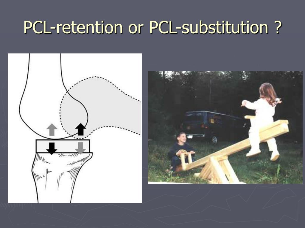 PCL-retention or PCL-substitution ?
