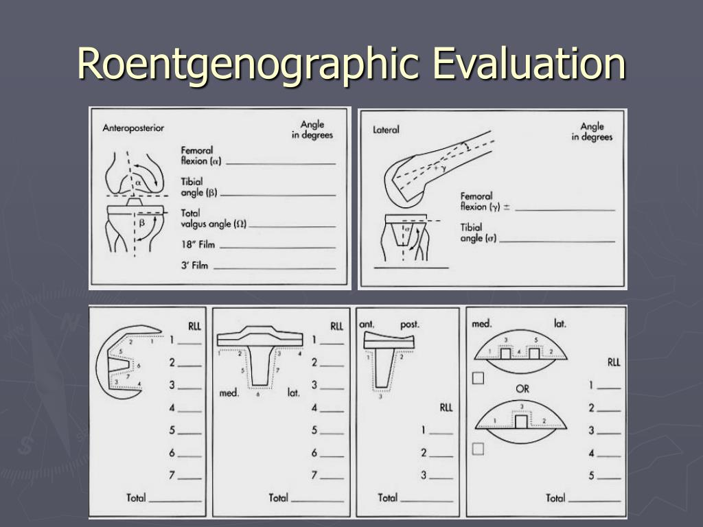 Roentgenographic Evaluation