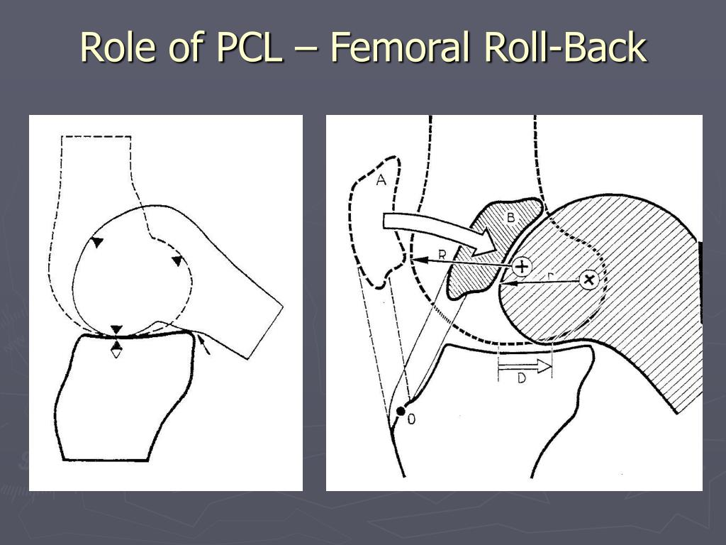 Role of PCL – Femoral Roll-Back