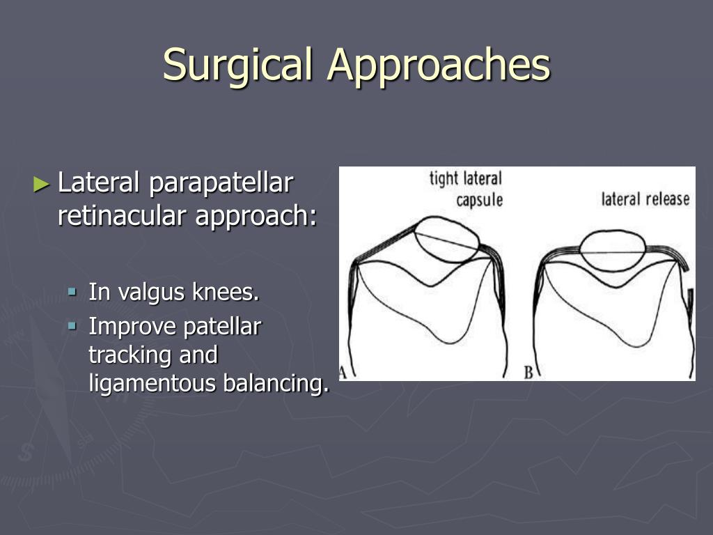 Surgical Approaches