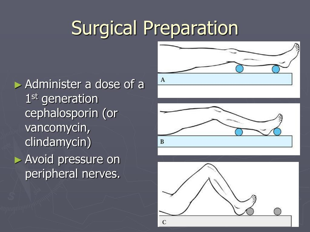 Surgical Preparation
