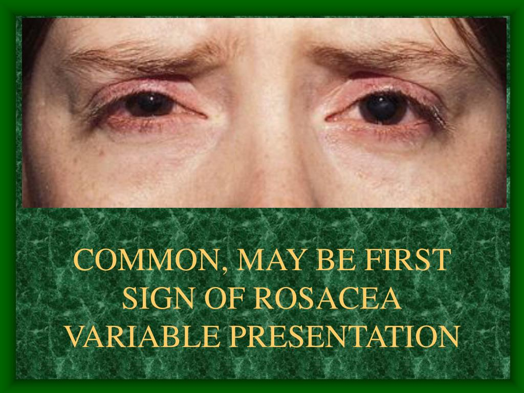 COMMON, MAY BE FIRST SIGN OF ROSACEA