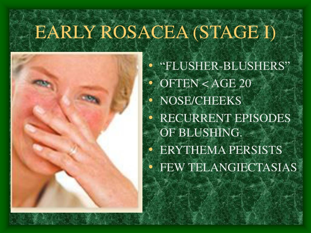 EARLY ROSACEA (STAGE I)