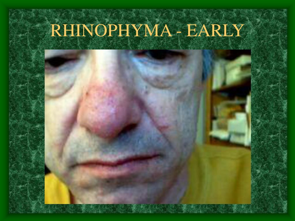 RHINOPHYMA - EARLY