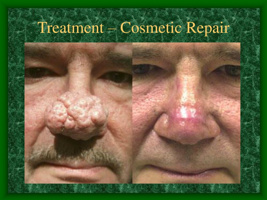 Treatment – Cosmetic Repair