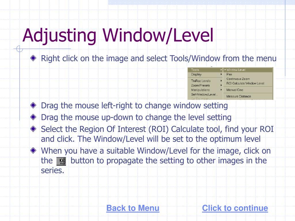 Adjusting Window/Level