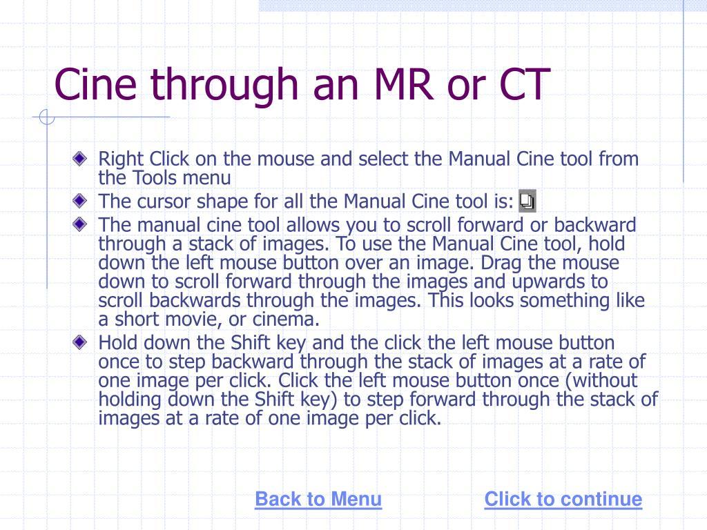 Cine through an MR or CT