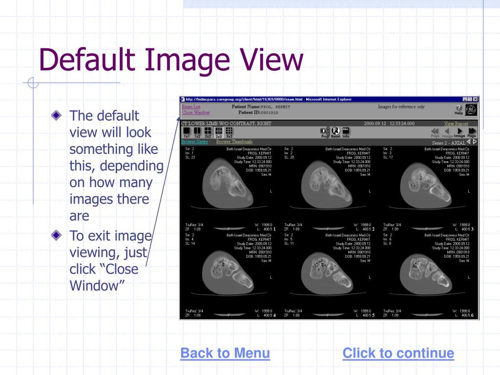 Default Image View