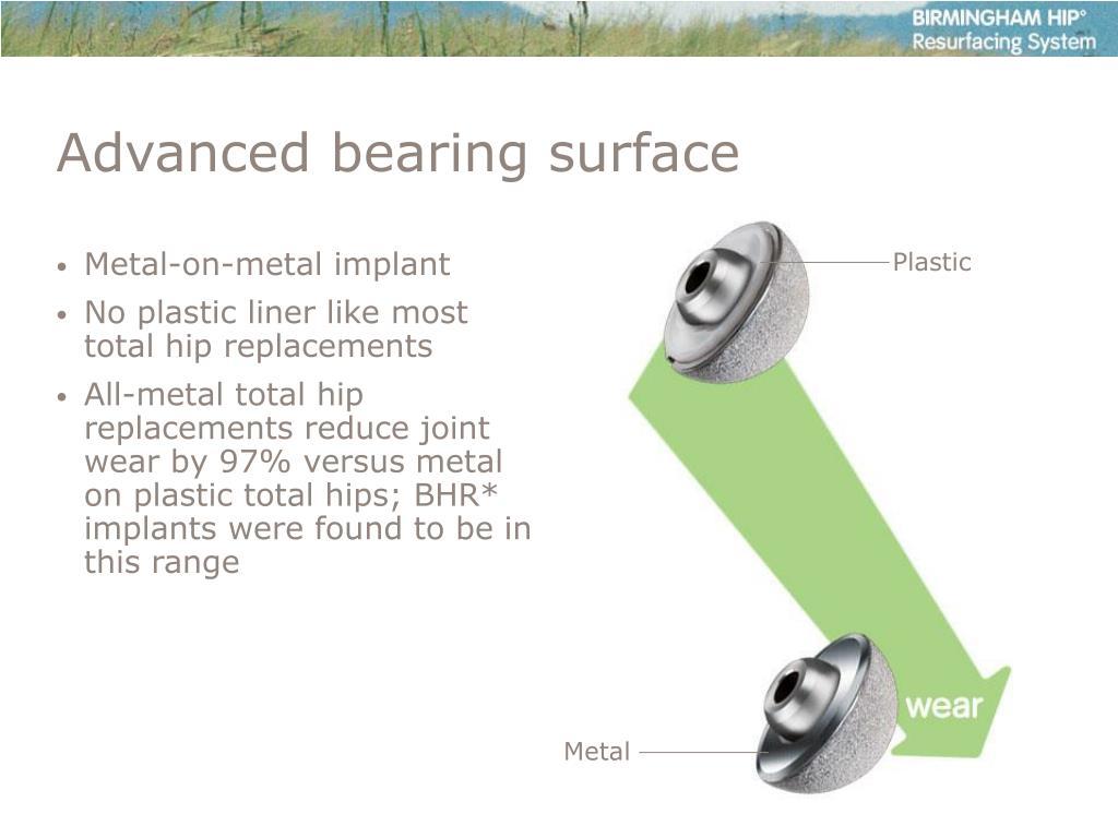 Metal-on-metal implant