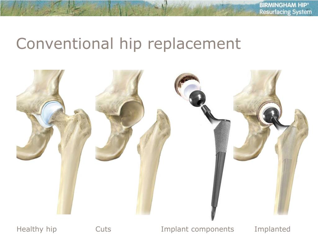 Conventional hip replacement